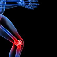 Η οστεοαρθρίτιδα και τα διαιτητικά συμπληρώματα στη θεραπεία της: μια κριτική ανασκόπηση
