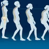 Οστεοπόρωση και καταγματικός κίνδυνος